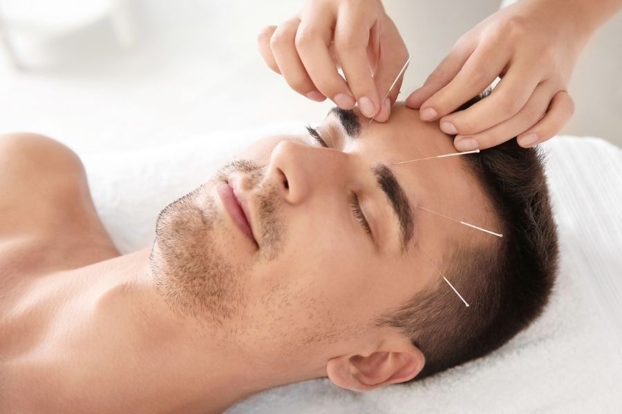 Acne skin problem and facial acupuncture
