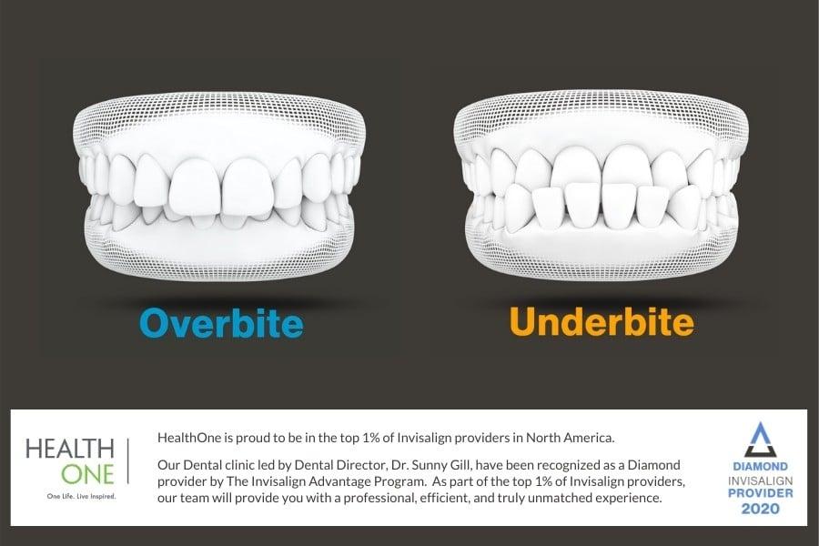 diagram of Overbite and underbite Teeth