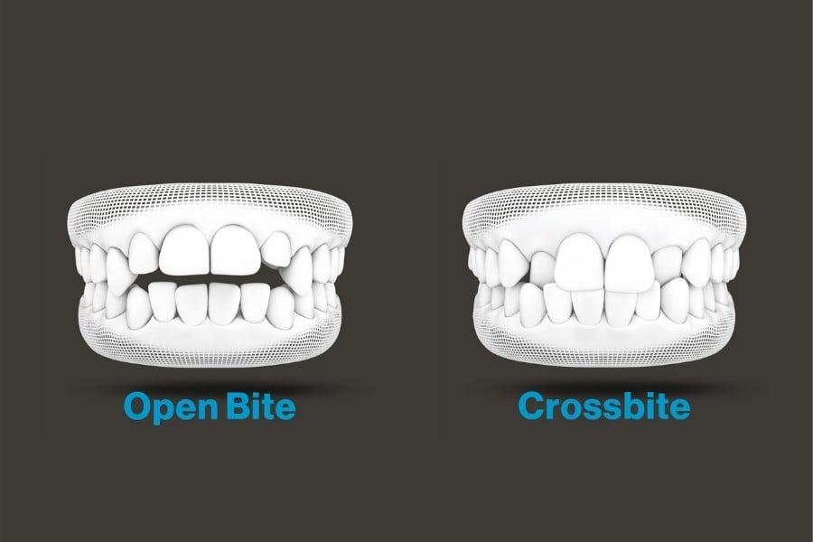 diagram of Open bite and cross bite