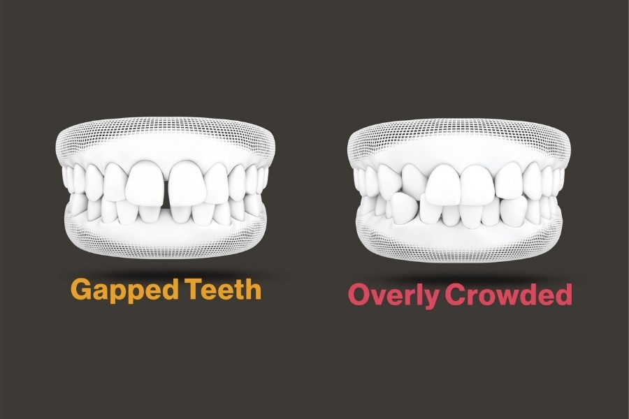 Diagram of Gapped Teeth and Overly Crowded