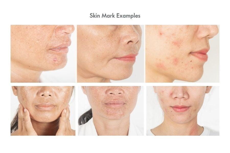 Skin Mark Examples
