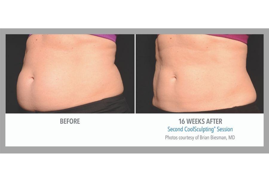 Results after CoolSculpting