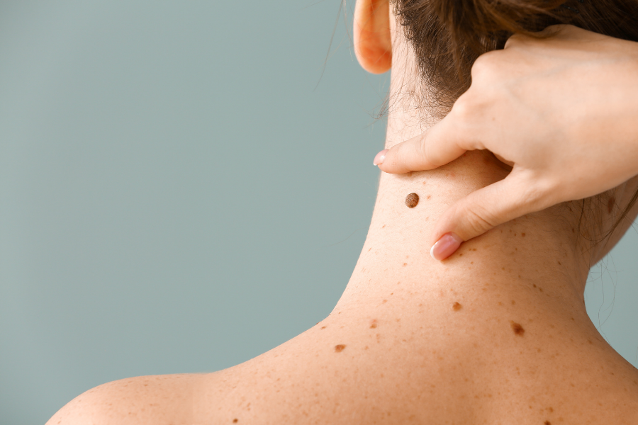Skin Moles On Your Body