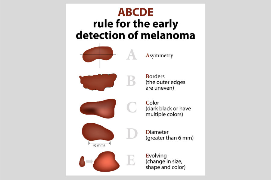 rules for the early detection of melanoma