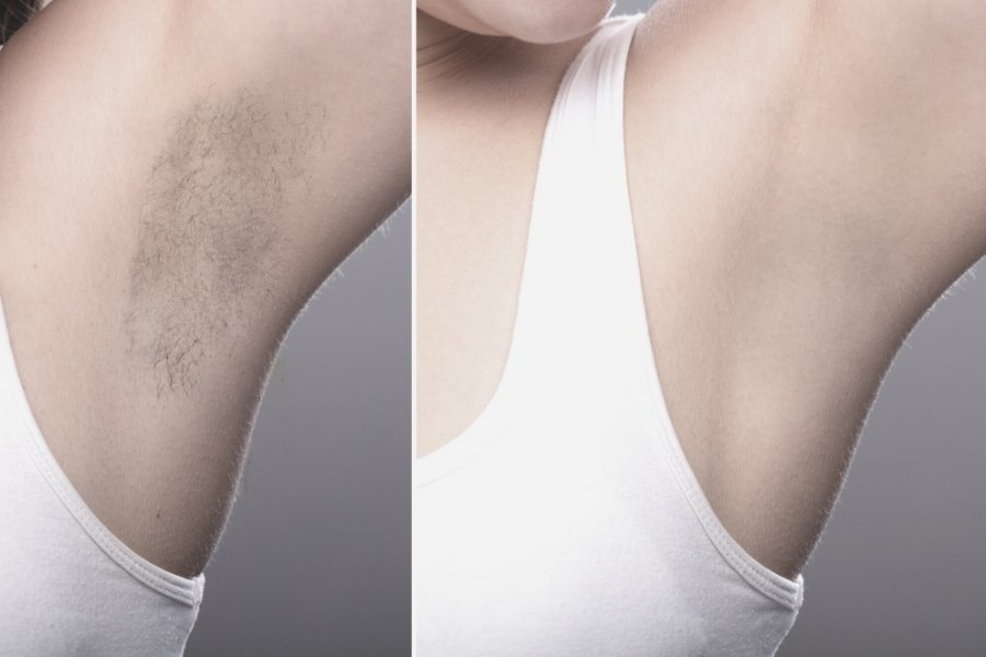 Underarms before and after