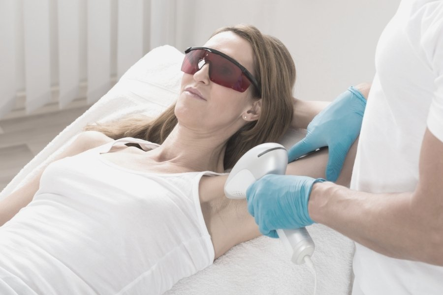 underarms hair laser removal